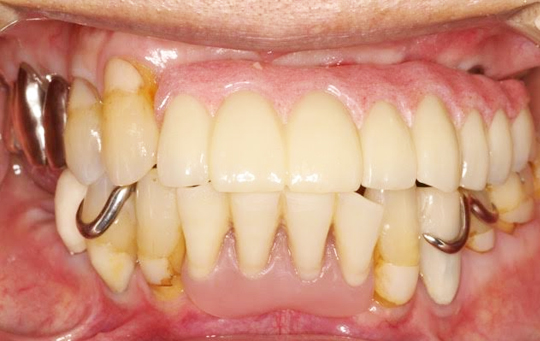 implant02_01_after