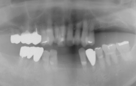 implant02_02_before