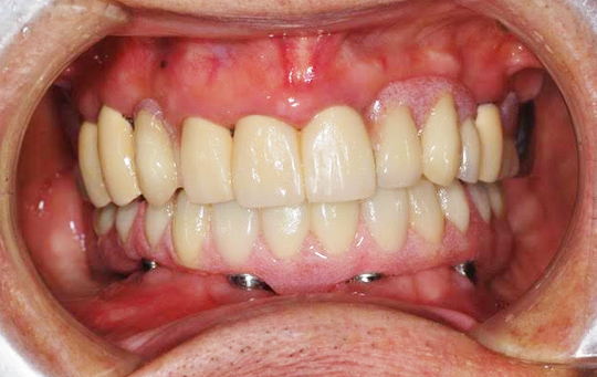 implant03_01_after
