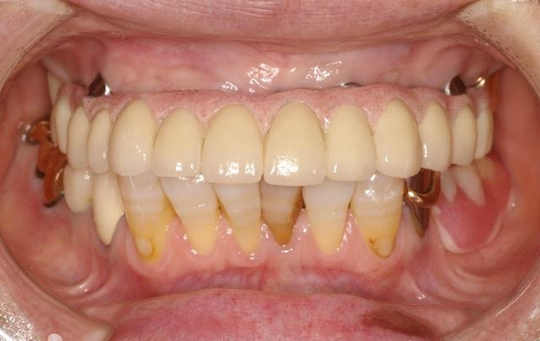 implant04_01_after