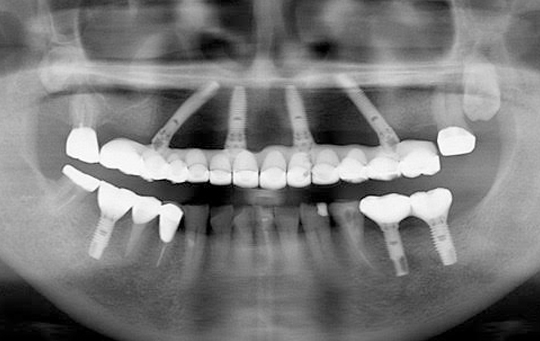 implant04_02_after