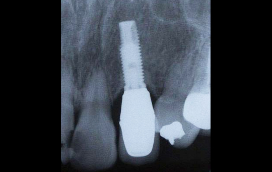 implant05_04