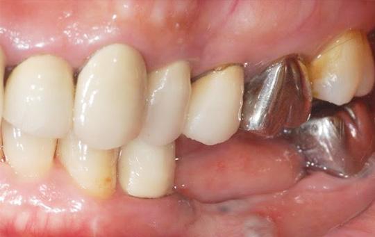 implant_image01