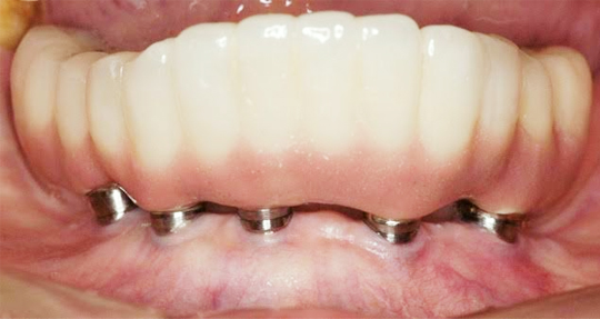 implant_top01